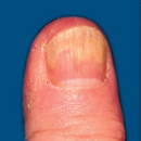 Discolouration of nails
